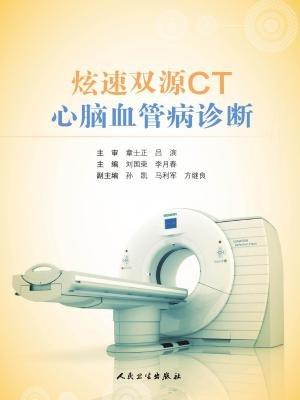 炫速双源CT心脑血管病诊断