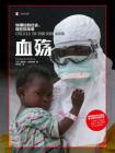 血殤:埃博拉的過去、現在和未來[精品]