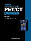 PET.CT疑难病例精解(第2版)