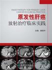 原发性肝癌放射治疗临床实践